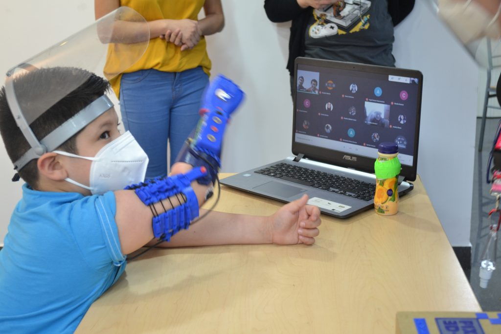 protesis extremidades superiores